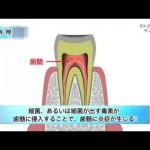 歯を削る医療機器を滅菌せず使い回している歯科医療機関が約7割も